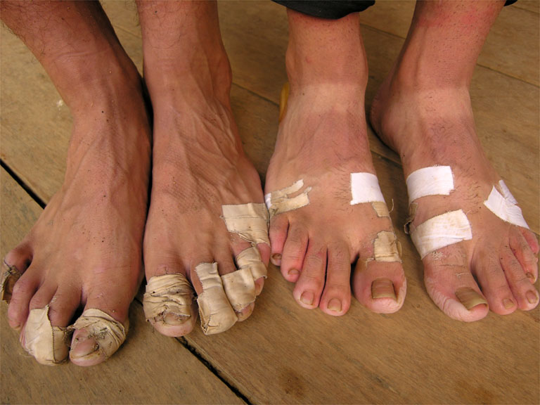Runners Feet Blisters Without healthy feet, you are